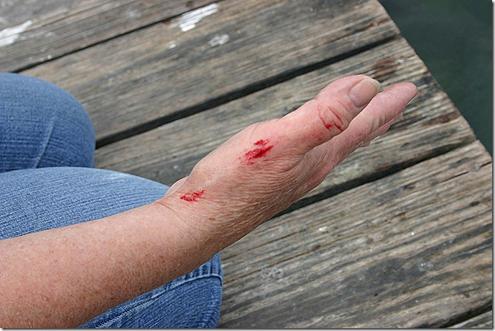 Terry bloody hand
